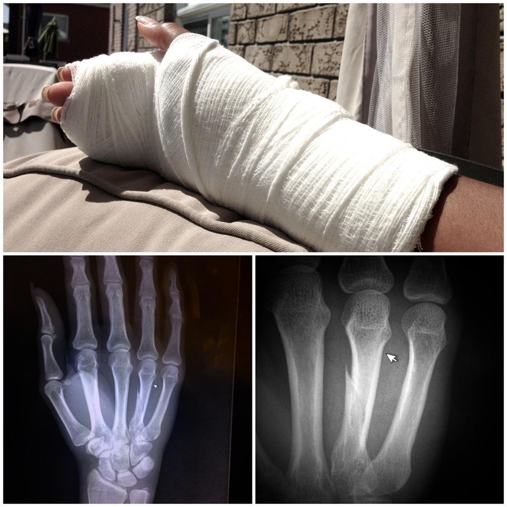 cast & x-rays